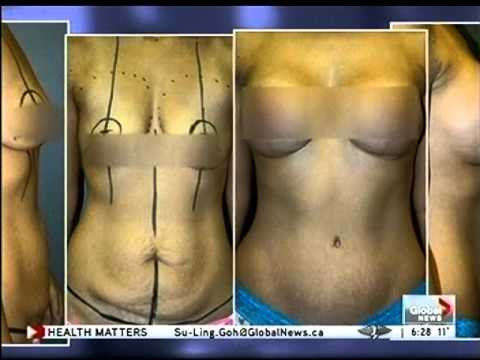 MOMMY MAKEOVERS Dr  Feng Chong (www PlasticSurgeryAlberta ca) Global News  Health Matters