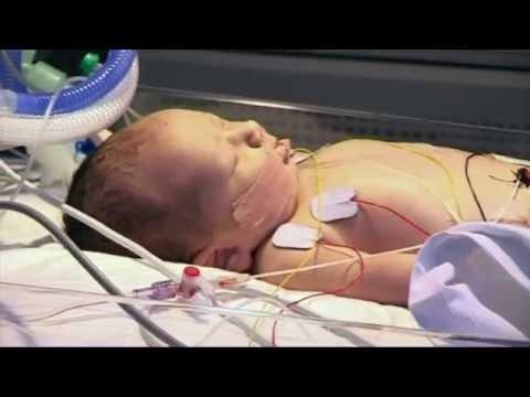 Детская скорая помощь: операция на сердце