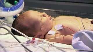 Детская скорая помощь: операция на сердце(Врачи вынуждены сделать новорожденному Скотту сложную операцию на сердце... Подписывайтесь на группы TLC..., 2015-07-13T10:53:40.000Z)