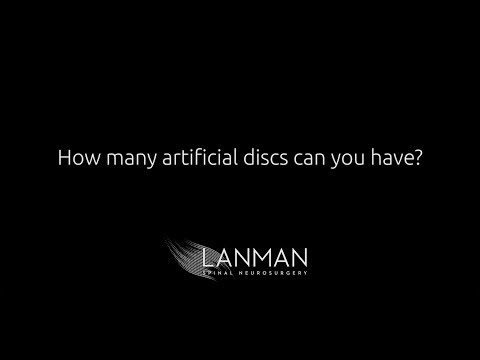 How many artificial discs can you have? | Dr. Todd Lanman