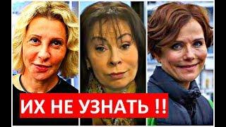 Download ЗВЁЗДЫ после НЕУДАЧНОЙ ПЛАСТИКИ! Mp3 and Videos