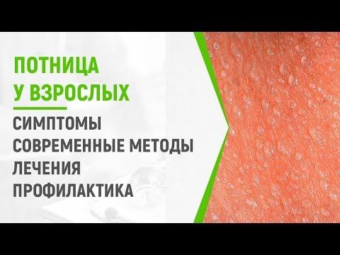 Симптомы и лечение потницы у взрослых