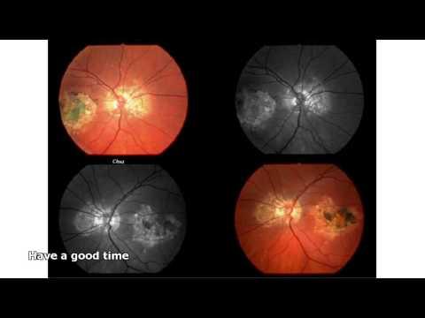 ПХРД (периферическая хориоретинальная дистрофия) глаз: что
