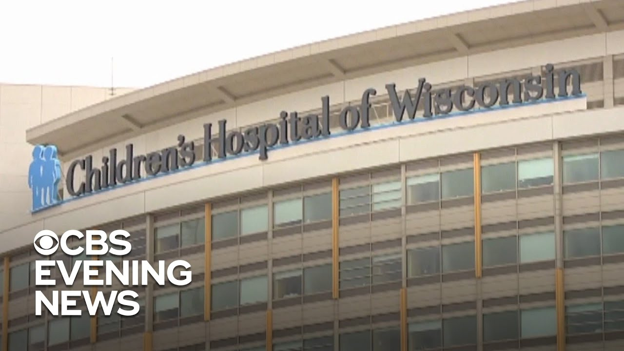 Wisconsin hospital reports spike in lung damage with young patients likely  linked to vaping