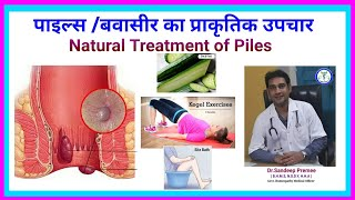 Diet plan for piles   Sitz Bath   Kegal Exercise   बवासीर का प्राकृतिक उपचार   bavaser me kya khaiye