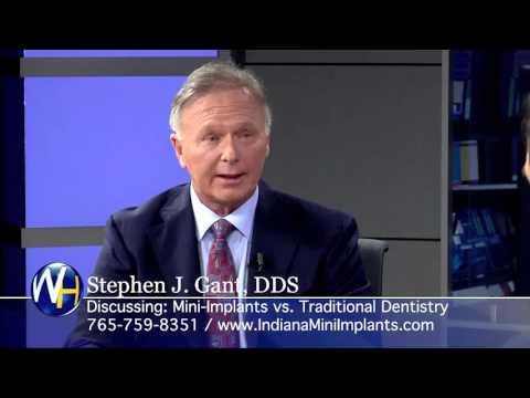 Mini Dental Implants vs. Traditional Dentistry with Yorktown, Indiana Dentist Stephen J. Gant, DDS