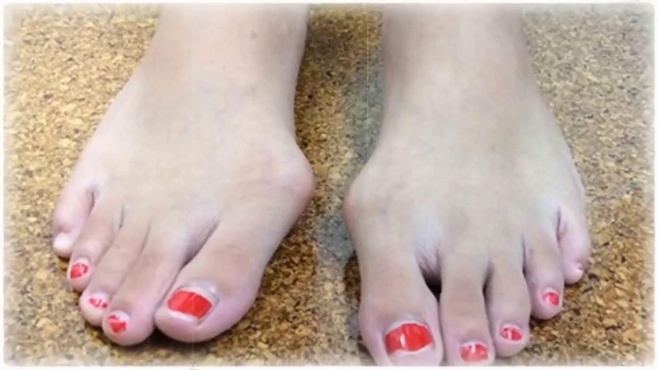 Bunion Specialist - Smyrna, TN: Neuhaus Foot & Ankle: Podiatry