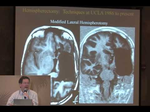 Differences in hemispherectomy procedures, seizure recurrence, and underlying conditions