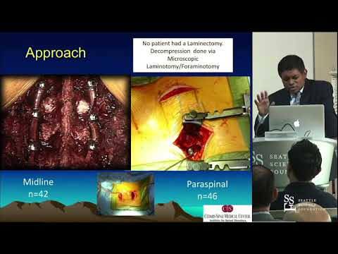 Minimally Invasive Spinal Surgery (MISS) - Neel Anand, MD