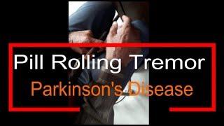 Pill Rolling Tremor - Parkinson's Disease