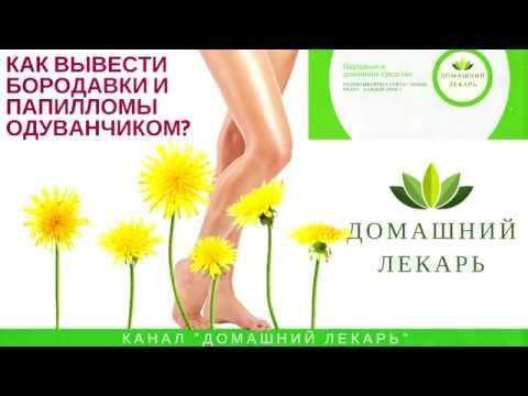 Одуванчик против бородавок - Afishaclub.ru