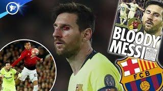 La blessure spectaculaire de Lionel Messi fait les gros titres | Revue de presse