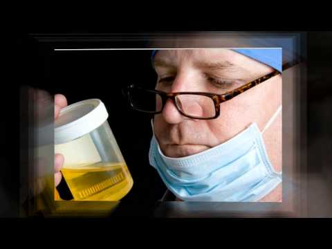 Negative Dilute Drug Test >> how to pass urine drug test naturally - beat urine drug ...