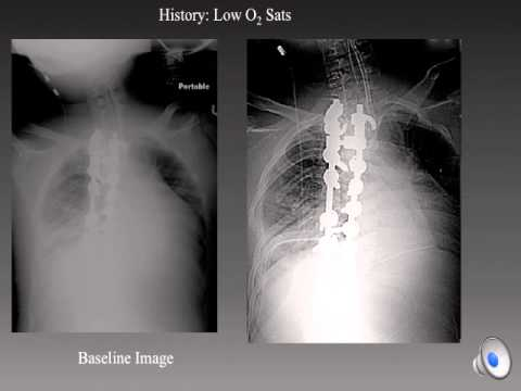 Chest Radiology Mistakes by Prof George A Taylor, Boston Children's Hospital