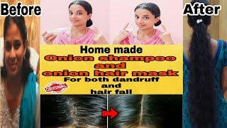Homemade Onion shampoo and onion hair mask in telugu for dandruff hair fall and all hair problems