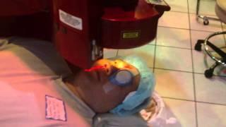 Safest Laser Vision correction procedure LASEK 11