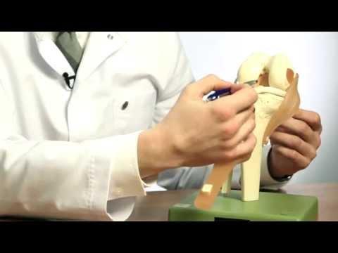 Как выглядит коленный сустав фото