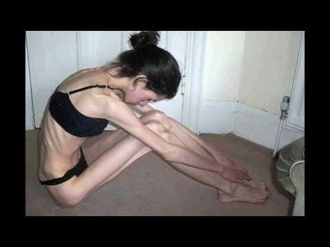 Eating Disorders PSA Sasse