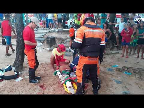 DM News :: Turista atacado por tubarão em praia de Recife está em estado grave e tem perna amputada.