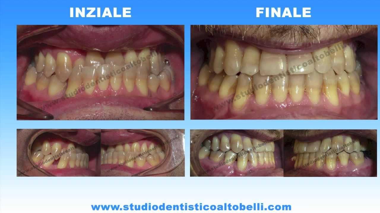 Ortodonzia Pescara Caso ortodontico di terza classe