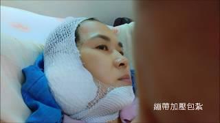 右下頷唾液腺腫瘤手術後傷口歷險記PART1