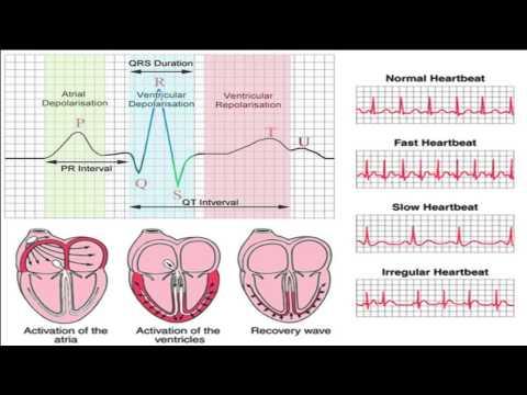 Cách nghe tim  - Chương 1( Phân biệt tiếng tim bình thường và bất thường)