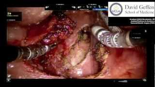 Tonsil Cancer Surgery - Transoral Robotic Surgery - Lateral Oropharyngectomy (Radical Tonsillectomy)