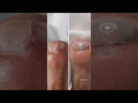 Pedicure Tutorial Nail Drill Damage Recovery thumbnail
