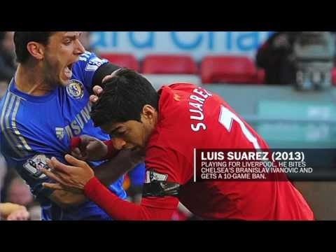 Suarez isn't the only player to bite