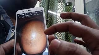 Results of hijama after 6 month in hair loss - LAA ILAAJ KOI