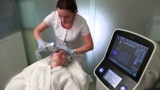 Ультразвуковой лифтинг Doublo | косметология спиридоновка(, 2013-09-18T14:56:41.000Z)