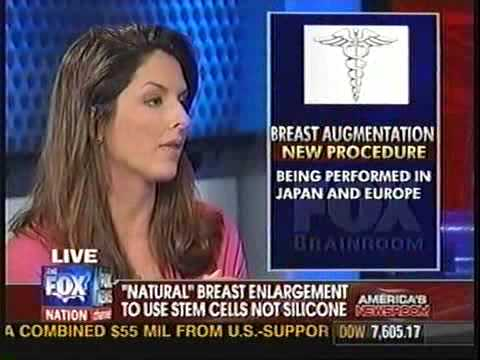 Dr. Walden discusses the use of stem cells and breast enlargement surgery