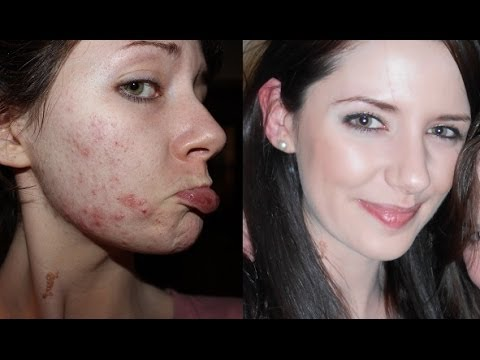 How To Get Clear Skin Farewell Acne Youtube