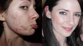 Causes Of Acne & How To Get Clear Skin NATURALLY | 7 Lifestyle Steps