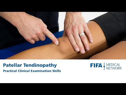Clinical Examination Techniques | Patellar Tendinopathy Knee