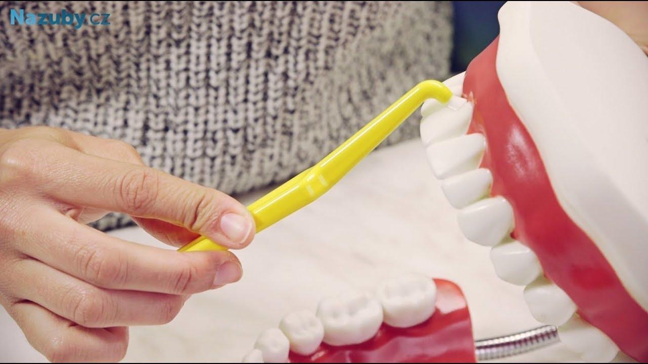 Čištěnie zubov jednozväzkovou kefkou