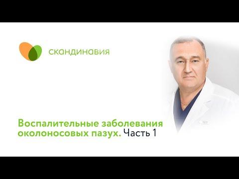 Воспалительные заболевания околоносовых пазух. Часть 1