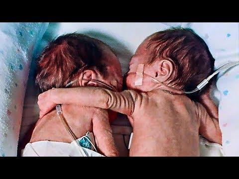 Hemşire Hasta Bebeği Veda Etmesi İçin İkizinin Yanına Koydu Ama Ardından Bir Mucize Yaşandı