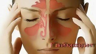 видео Лечение гайморита без насморка