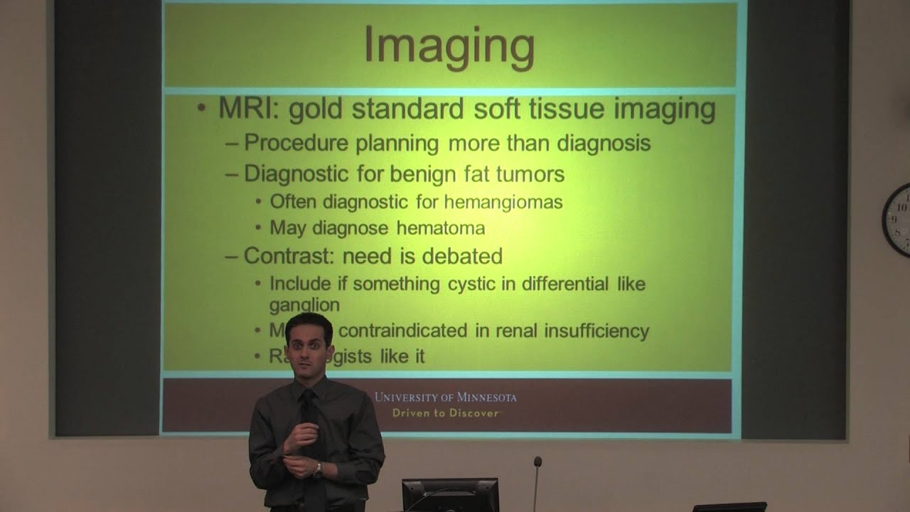Sarcoma Medical Presentation