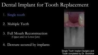 Dental Implant, Bone Graft & Sinus Lifts |Oasis Dental|Specialist Team|Milton,Oakville,Mississauga Thumbnail