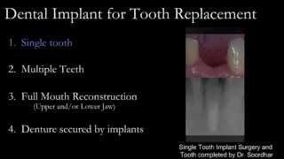 Dental Implant, Bone Graft & Sinus Lifts  Oasis Dental Specialist Team Milton,Oakville,Mississauga Thumbnail