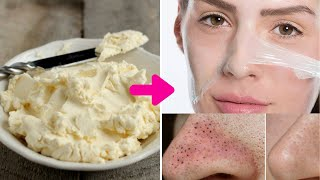 DIY Milk Peel Off Mask Get Rid Of Unwanted Facial Hair Blackheads Whiteheads at Home