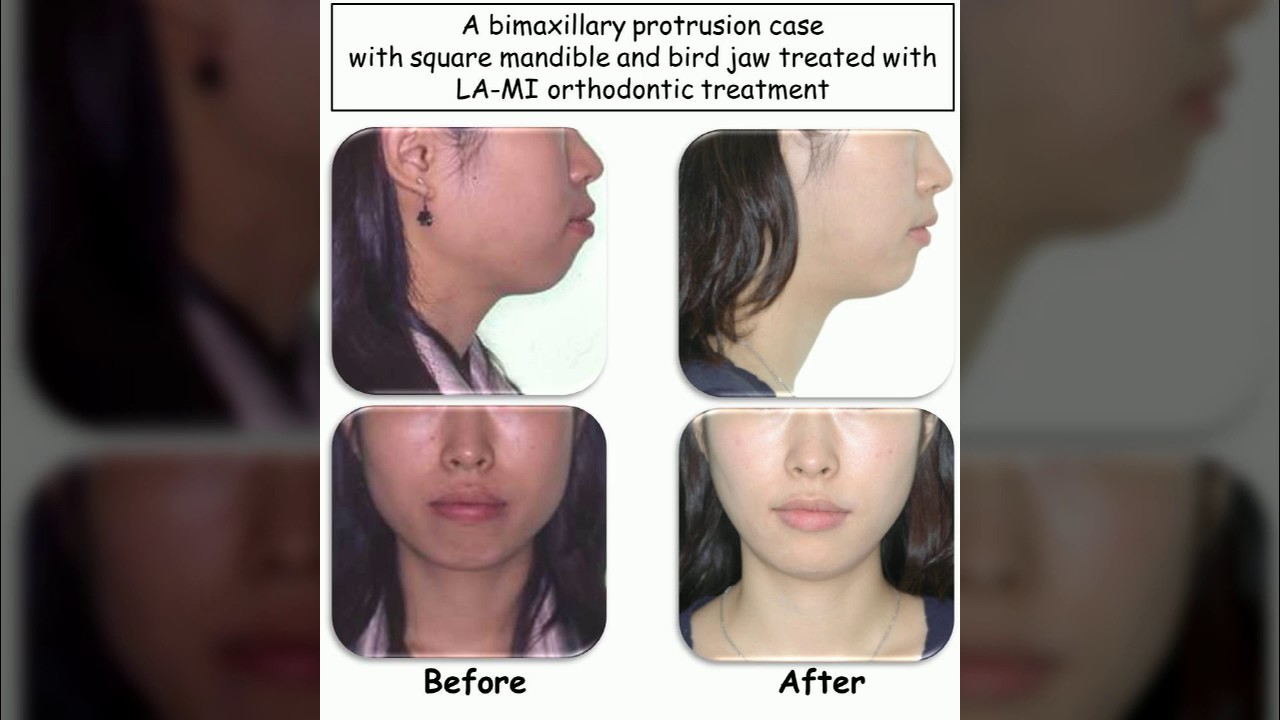 How to cure protrusion 9