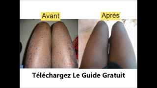 vitiligo traitement naturel comment soigner le vitiligo