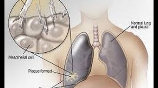 Mesothelioma Low Firm, Mesothelioma Attorneys, Asbestos Lawyers in San Diego