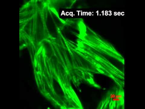 F-Actin Live Cell staining with SiR-Actin in cardiac Myocytes