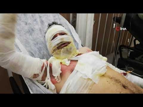 Erzincan'da Sobayı Benzinle Tutuşturmaya çalışan Iki Arkadaş Kendilerini Yaktı