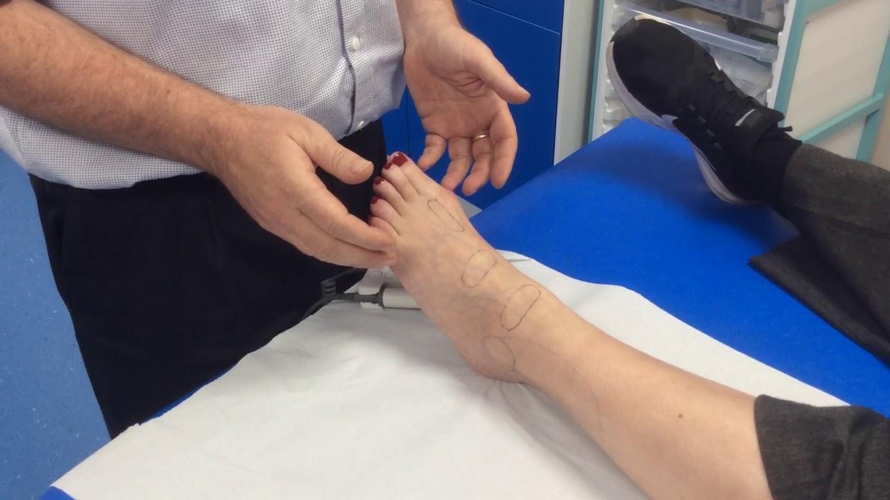Peripheral Vascular Doppler