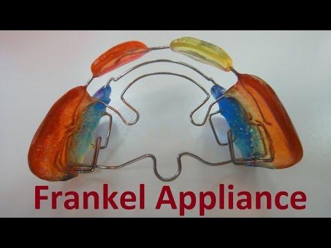 Role of Frankel Appliances by Prof John Mew